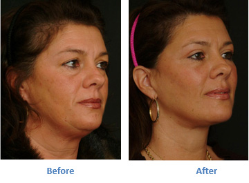 Get Back Your Radiance and Youth With A Face-lift Surgery