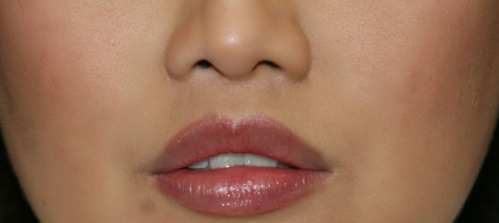 Lip Lift - A Brief Guide Explaining Everything About The Procedure