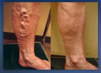 What Are The Symptoms Of Varicose Veins And How To Get Rid From It?