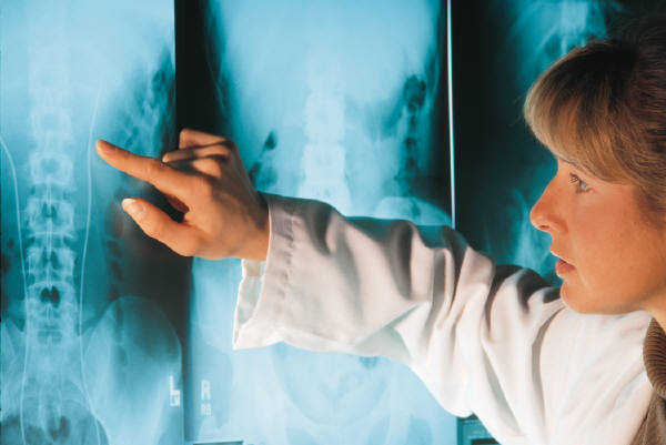 Do You Need An X-Ray To Diagnose Your Back Pain?