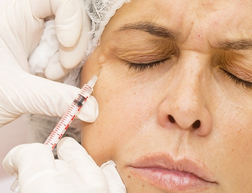 In Today's Culture, Many Find Botox A Wonderful Asset