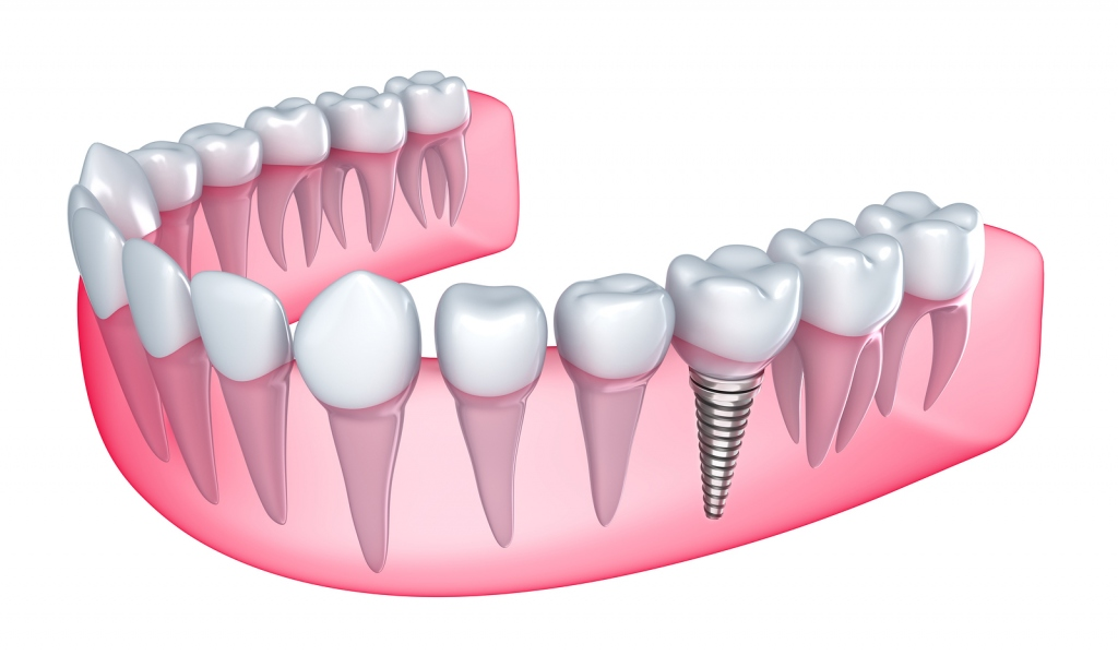 Types Of Tooth Replacement and Benefits