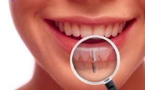 An Overview Of The Dental Implants and How They Are Used