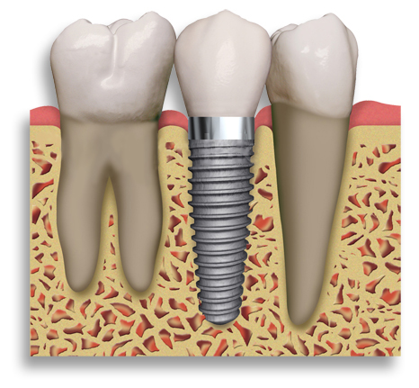 The Impact Of Dental Implants In Mouth Beautification