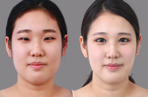 Things To Inquire About Lower Eyelid Surgery