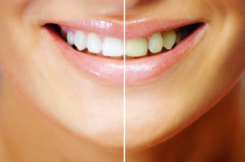 What You Should Know About Teeth Whitening Strips