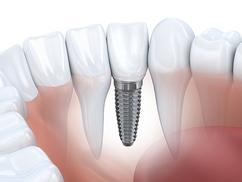 How Dental Implants Can Be Beneficial To You