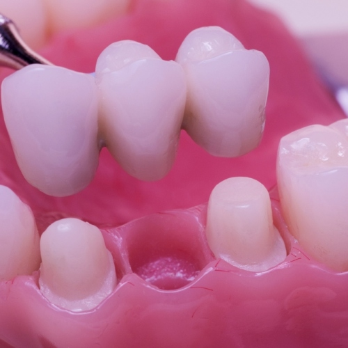3 Dental Bridge Problems You Should Avoid