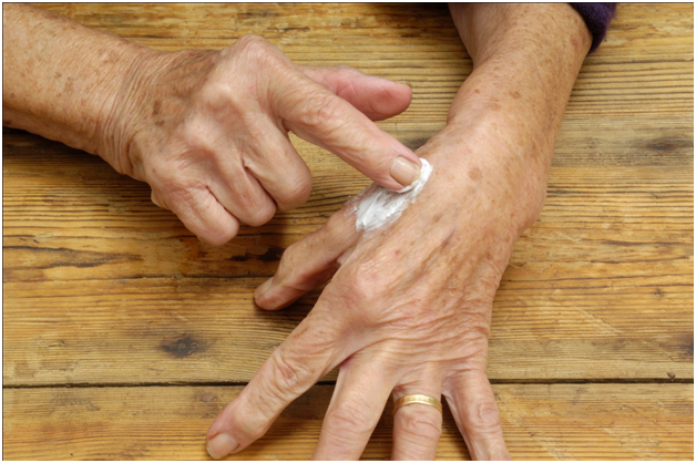 Top 5 Medicinal Creams To Ease The Arthritis Pain