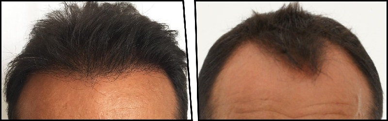 FUE Hair Transplant: What You Need to Know