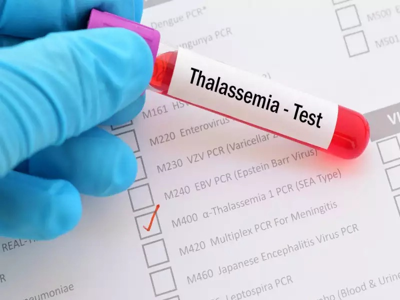 A Complete Guide On Thalassemia