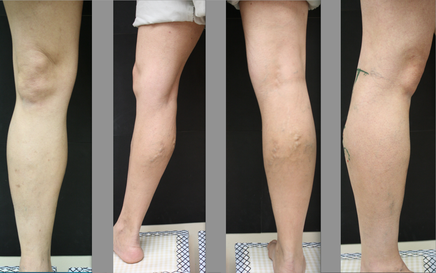 Comprehend The Peripheral Vein Infection Associated To Legs