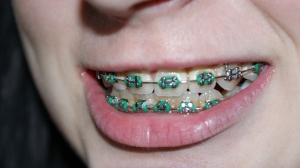 A girl with braces