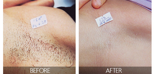 3 Tips On How To Maximize Your Laser Hair Removal Experience