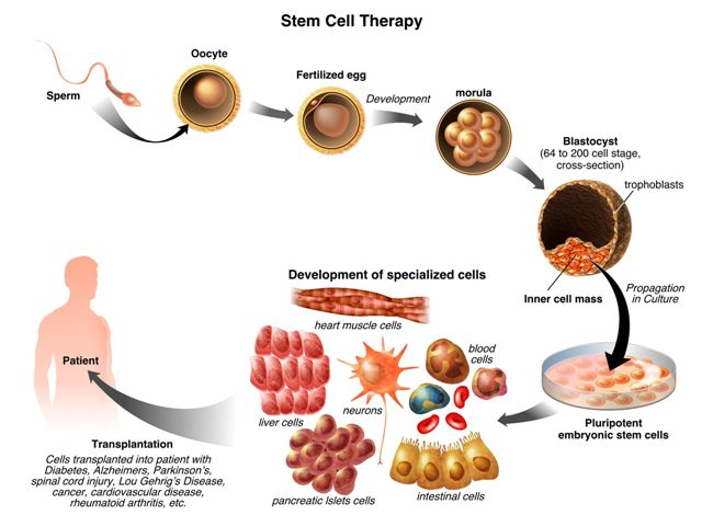 Learn More About Stem Cell Treatment
