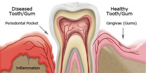 The Diet Strategy For Dental Care