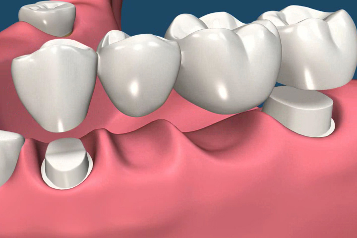 How Does The Dental Bridges Performed by Dentists