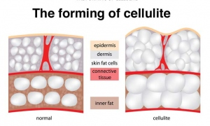 Truth About Cellulite Formation