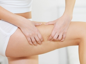 The Adverse Effects Of Cellulite
