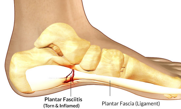Heel Pain? Solutions For Plantar Fasciitis and Other Heel Pain Causes
