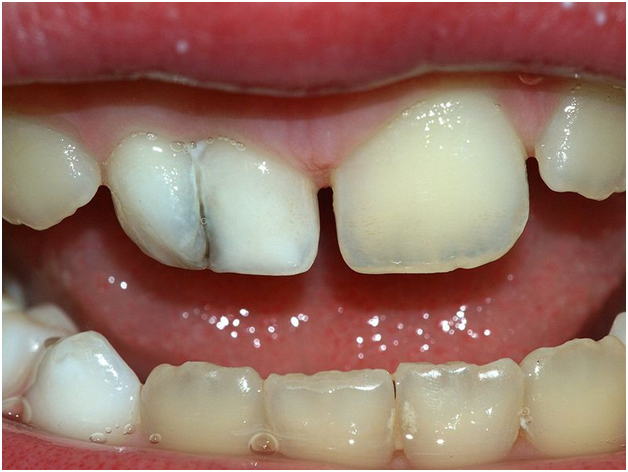 So You Have A Missing Incisor: What Can You Do?