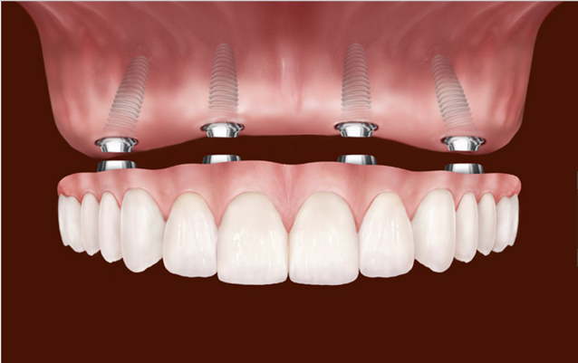 Top 5 Myths Associated With Dental Implants You Must Know