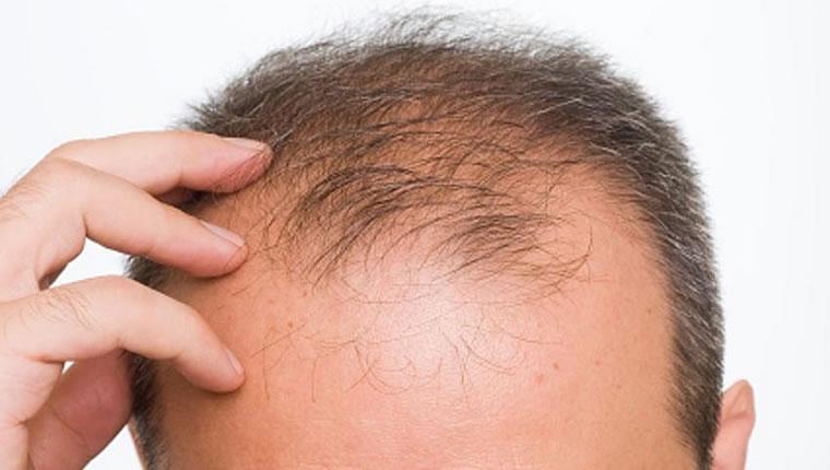 alopekia