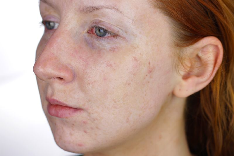 Laser Freckle Removal Not As Bad As It Sounds