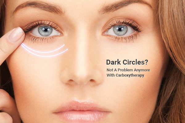 Dark Circles Is No More A Big Problem With Carboxytherapy