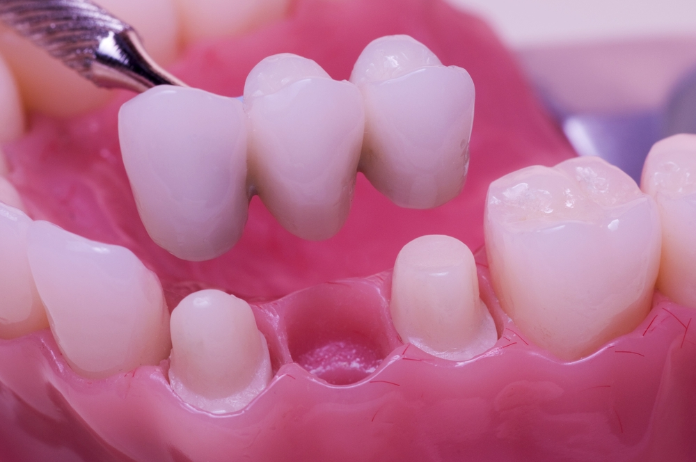 3 Dental Bridge Problems You Should Avoid