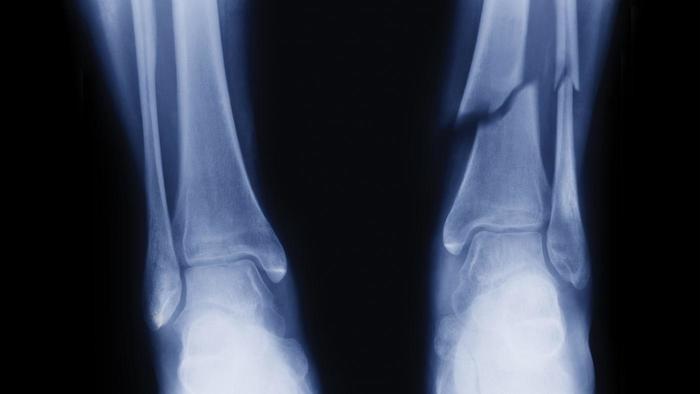 Healing Timelines for Sprains, Fractures and Broken Bones