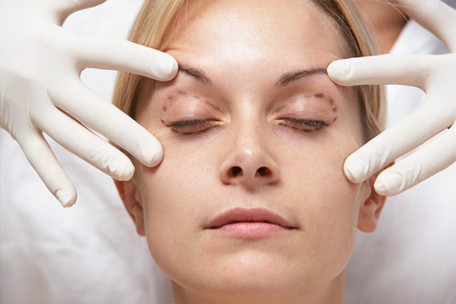 9 Ways To Have A Successful Recovery after Eyelid Surgery