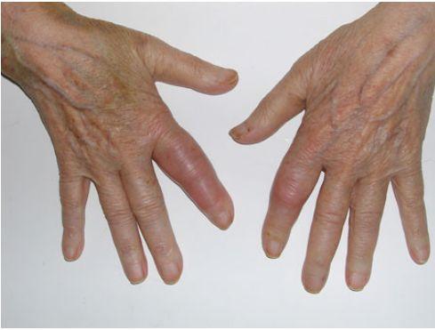 A Short Guide on Arthritis!