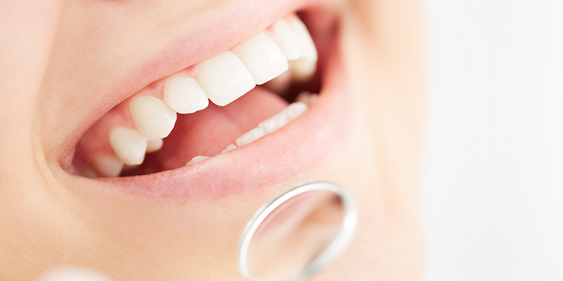 Why You Should Look Into Dental Implants