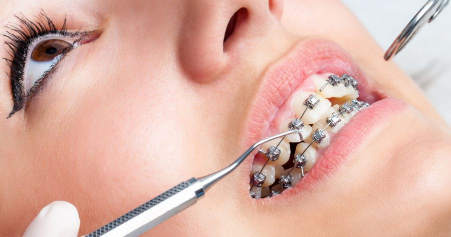 Invisalign – Get Straight Teeth Via Stylish Treatment