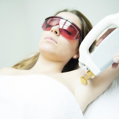10 Things You Should Know About Laser Hair Removal