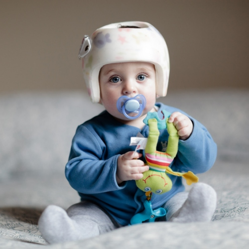 Infant Plastic Surgery and Positional Plagiocephaly With The Help Of Alton Ingram MD